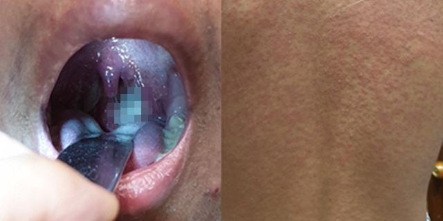 """แพทย์เตือน! """"จูบ"""" เสี่ยงเป็นโรคโมโนนิวคลิโอซิส หลังชายวัย 15 ติดเชื้อไวรัส ผื่นขึ้นเต็มตัว"""