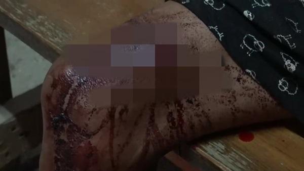 ผู้เฒ่าสระบุรี เหลืออดจริงๆ ใช้อาวุธปืนยิงเพื่อนบ้าน 3 นัด เจ็บสาหัสปางตาย