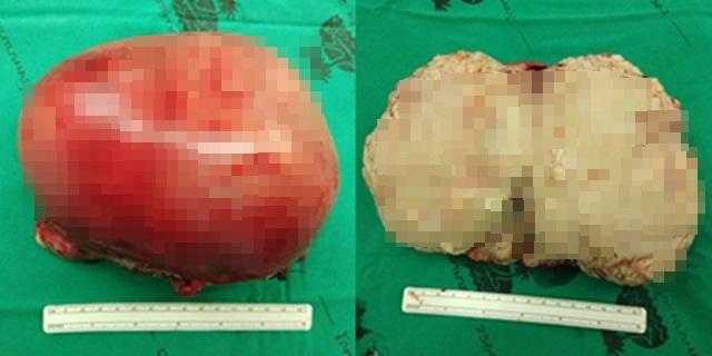 แพทย์เตือน! ผู้หญิงอย่านิ่งนอนใจ หลังพบผู้ป่วยมีเนื้องอกมดลูกขนาดใหญ่กว่า 20 ซม.