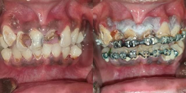 ทันตแพทย์หญิงเตือน! ภัยร้ายจากการจัดฟันแฟชั่น วอนคิดให้ดีก่อนทำ