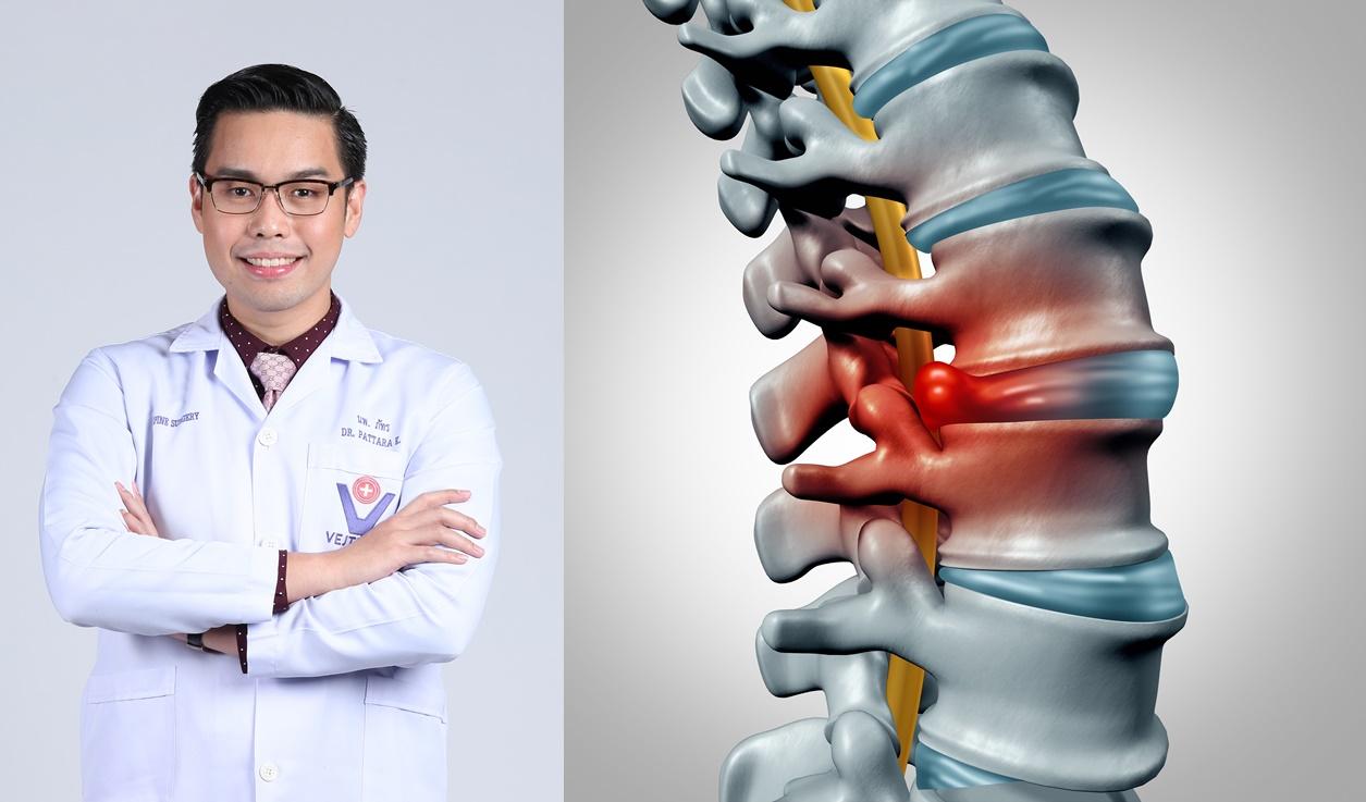 หมอนรองกระดูกทับเส้นประสาท โรคยอดฮิตของคนปวดหลัง