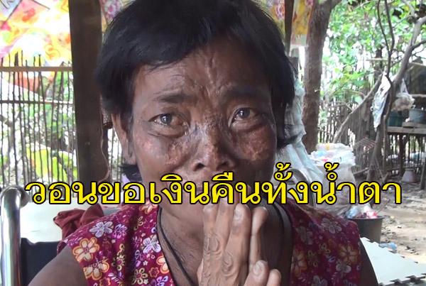 ยกมือไหวทั้งน้ำตา! ป้าบุรีรัมย์ 57 ปีวอนขอเงินคืน หลังนั่งรถเข็นไปฟอกไต รพ. วานจนท.เปลไปกดเงินถูกอมหาย 5 พัน