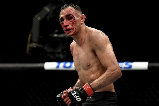 """ส่ง """"โทนี"""" เข้าโรงหมอ หลังโดนต่อยเลือดอาบศึก UFC"""