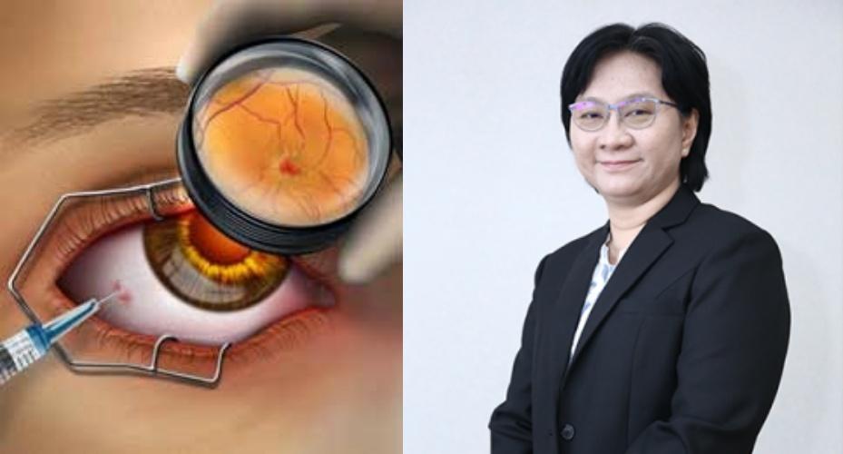 """ฉีดยา """"เข้าวุ้นตา"""" ช่วยรักษาโรคจอตาหลายอาการ ลดจอตาบวม เห็นภาพชัดขึ้น"""