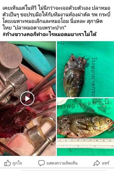 ระทึก ! ทีมแพทย์กระบี่ผ่าตัดดึงปลาหมอขนาดใหญ่ออกจากลำคอคนไข้หลังปลาดิ้นหลุดเข้าปาก