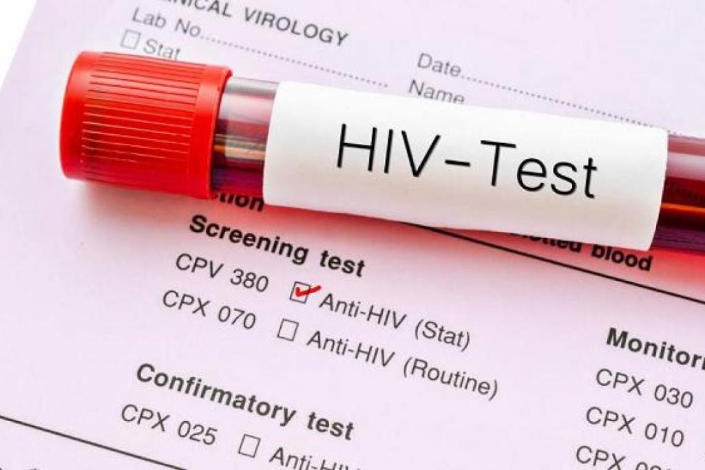 """กรมควบคุมโรค รณรงค์ """"HIV"""" ตรวจฟรี รู้เร็ว รักษาเร็ว ป้องกันได้"""