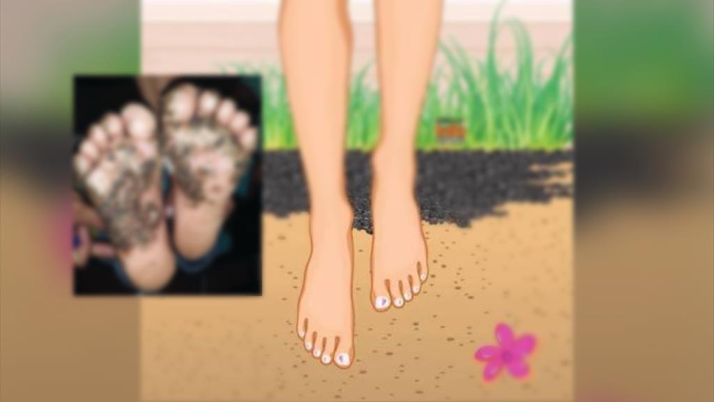"""ภาพสยอง! เท้าเด็กเดินไม่สวมรองเท้า ชี้เกิดจาก """"หมัด"""" ไชเท้าจนผิวหนังอักเสบ"""