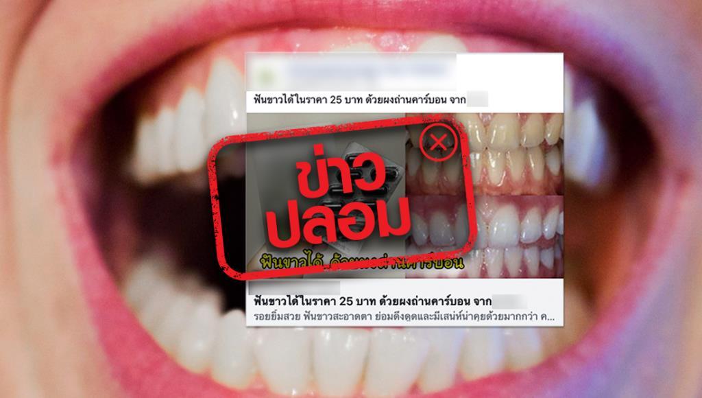ข่าวปลอม! ผงถ่านคาร์บอนช่วยทำให้ฟันขาว