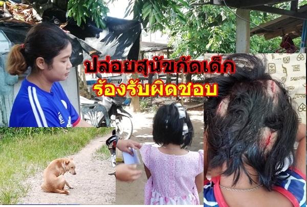 แม่เด็กหญิง 7 ขวบ เรียกร้องเจ้าของสุนัข รับผิดชอบค่ารักษาพยาบาล หลังปล่อยกัดหัวลูกสาวเป็นแผลเหวอะหวะ
