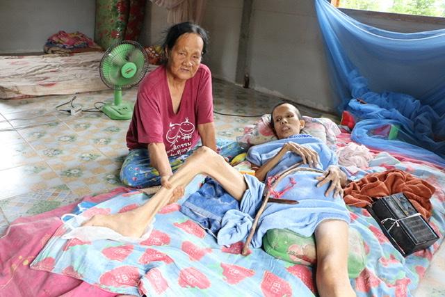 พบสาวกำแพงเพชรป่วยร่างกายแข็งทั้งตัว นอนขยับไม่ได้กว่า 30 ปีเหมือนตายทั้งเป็น