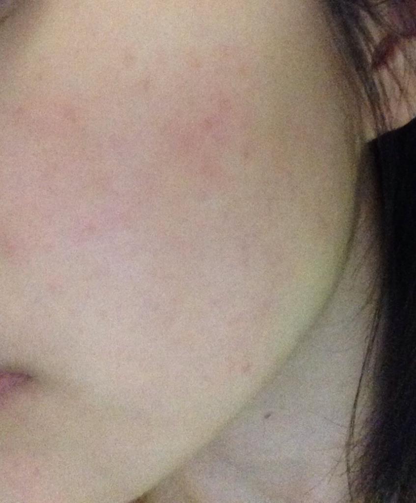 ผื่นแดงที่หน้า (Red face Syndrome)