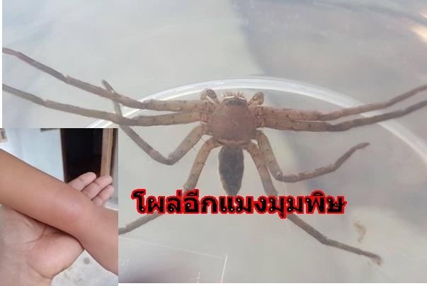 โผล่อีกแมงมุมพิษ กัดแขนเด็กหญิง 8 ขวบ แผลบวมแดงปวดถึงไหล่ แม่กังวลแม้อาการดีขึ้น วอนตรวจสอบชนิด