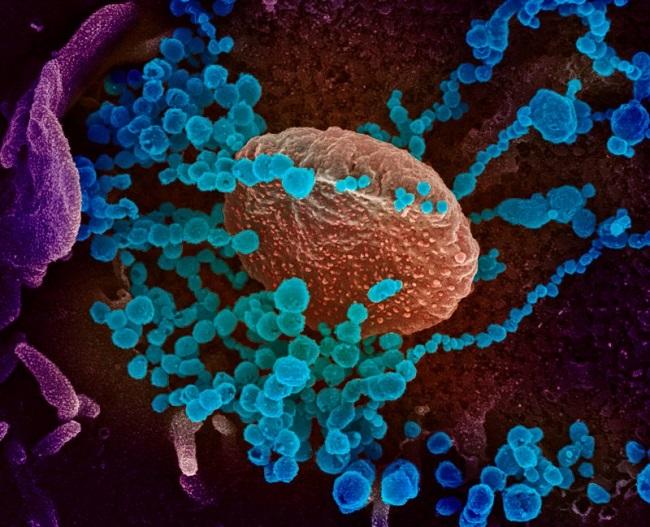 ได้เครียดกันอีก! ผลวิจัยพบคนไข้ในฮ่องกงติดโควิด-19 รอบสอง บ่งชี้ภูมิคุ้มกันอยู่ไม่นาน-เชื้อฝังตัวในร่างกาย