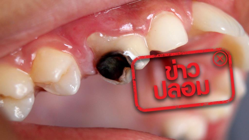 ข่าวปลอม! สาเหตุของการปวดฟัน ฟันผุเกิดจากแมงกินฟัน