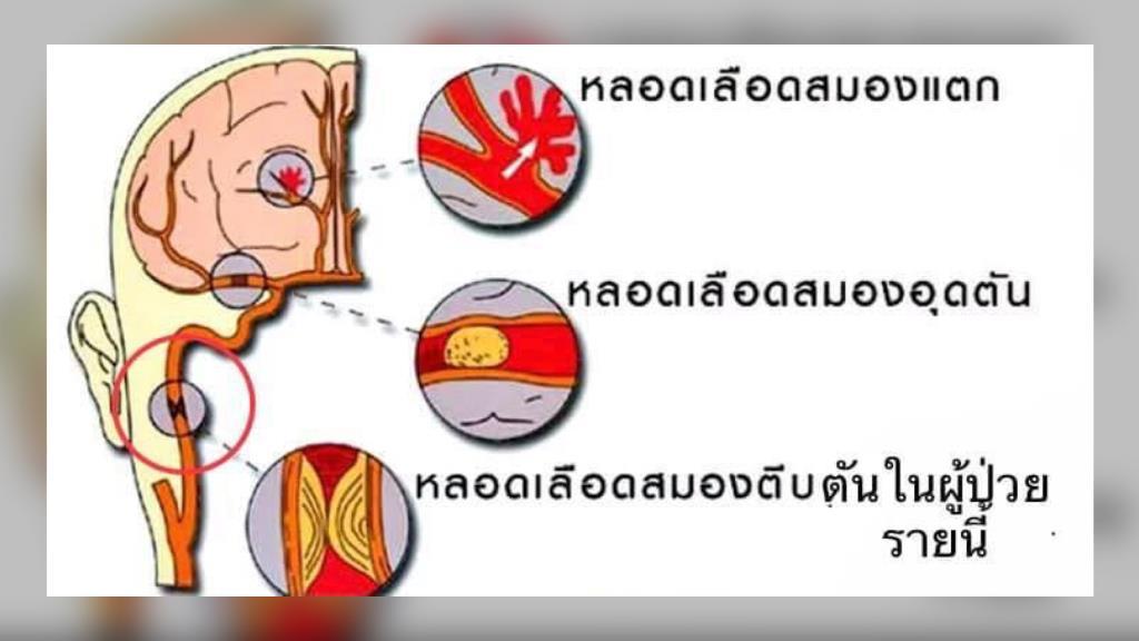 """""""หมอมนูญ"""" เผย """"โรคหลอดเลือดสมอง"""" เป็นอันดับ3 คร่าชีวิตคนไทย"""