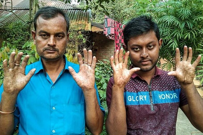 สุดแปลก! ครอบครัวบังกลาเทศโอดใช้ชีวิตยาก ผู้ชายทุกคนเกิดมา 'ไม่มีลายนิ้วมือ'