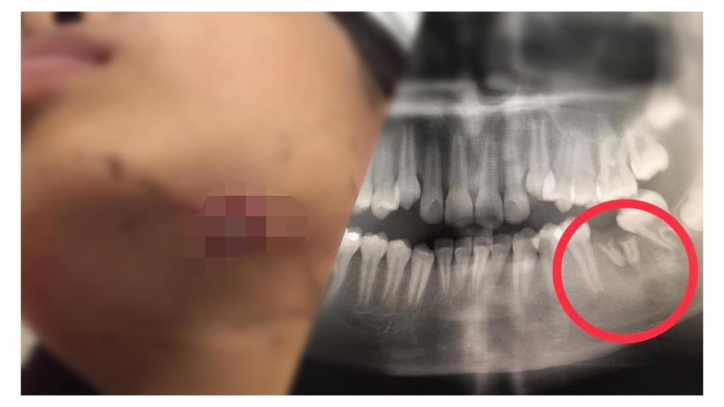 หมอฟันเตือน! ฟันผุอย่าละเลย อาจทำให้เกิดฝีใต้คางเรื้อรังได้