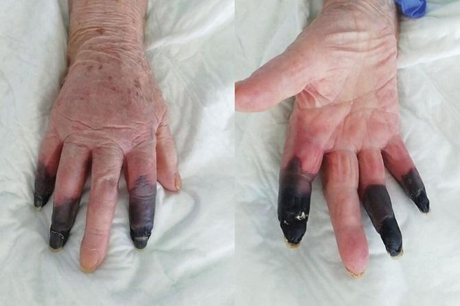 ผงะ!หญิงชราพบอาการประหลาดจากการติดเชื้อโควิด-19 ต้องตัดนิ้วทิ้ง