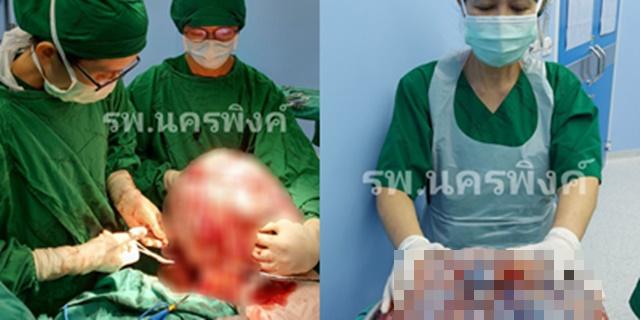 """รพ.นครพิงค์ ทำสำเร็จ! ผ่าตัด """"มะเร็งรังไข่"""" ขนาดใหญ่น้ำหนักกว่า 25 กิโลกรัม ลุล่วงไปด้วยดี"""