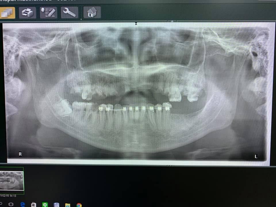 """ต้องเตือนอีกกี่ครั้ง? หมอฟันเผยเคสหนัก """"จัดฟันแฟชั่น"""" สุดท้ายต้องถอนเกือบหมดปาก"""