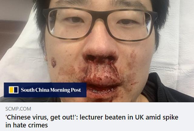 ไวรัสจีน ออกไป! อาจารย์มหาวิทยาลัยเซาท์แฮมป์ตัน ถูกรุมทำร้ายที่อังกฤษ