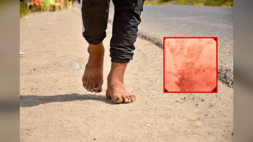 """""""หมอแล็บ"""" เตือนอย่าเดินเท้าเปล่า เสี่ยงพยาธิไชทะลุผิวหนังลามอวัยวะสำคัญติดเชื้อตายได้"""