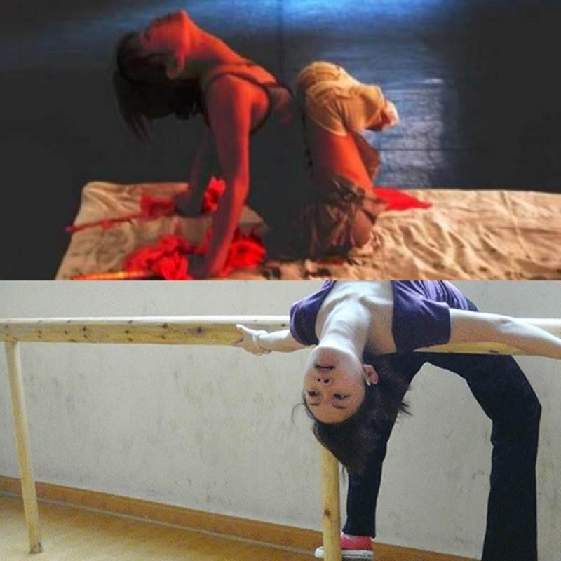 เลี่ยวจื้อฝึกฝนการเต้นหลังผ่าตัดขาสองข้าและใส่ขาเทียม