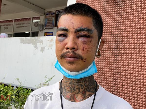 ชายหนุ่มร้องขอความเป็นธรรมถูกกลุ่มชายแปลกหน้ารุมกระทืบจนบาดเจ็บ