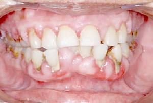 วัยรุ่น วัยทำงาน เจอปัญหาฟันผุ โรคปริทันต์ เสี่ยงสูญเสียฟันทั้งปาก