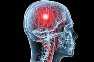 FAST วิธีสังเกตโรคหลอดเลือดสมอง ช่วยลดพิการ-ตาย