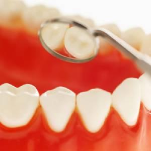 วัยทำงานฟันผุถึงขั้นถอนฟันทิ้ง 26% แนะวิธีห้ามเลือดหลังถอนฟัน