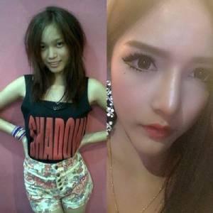 """3 ปีเปลี่ยนชีวิต! สาวน้อยวัย 23 เผยประสบการณ์ศัลยกรรม จากทำจมูกยัน """"นมใหญ่ 800 CC"""""""