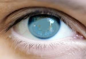 ผู้ป่วยตาต้อกระจก 3 จชต.เข้าถึงการรักษาเพิ่ม 2 เท่า