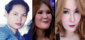 """อุทาหรณ์สาวอยากสวย """"ส้ม ตีสิบ"""" ซัดแหลกเอเยนซีหลอกศัลยกรรมเกาหลีลอยแพหลังทำจมูกพัง!"""