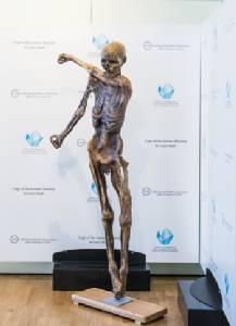 Iceman mummy