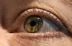 """""""ตาบอดกลางคืน"""" โรคกรรมพันธุ์-ขาดวิตามินเอ"""