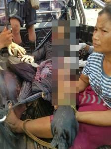 เกิดบ่อย หนุ่มพม่าเหยียบระเบิดขาขาดกระเด็น จนท.ขอส่งข้ามรักษาฝั่งไทย