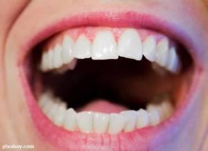 5 ปัญหาสุขภาพ 'ฟัน' ที่คนวัยทำงานต้องใส่ใจ