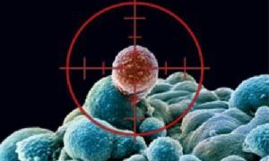 วิธีป้องกันโรคมะเร็งที่ได้ผล / ดร.สุพาพร เทพยสุวรรณ