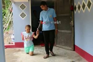 รักแท้มีอยู่จริง!! หนุ่มหล่อพบรักสาวพิการแขนขาขาด แต่งงานชื่นมื่นวันนี้