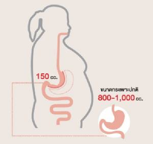 ผ่าตัดส่องกล้องลดขนาดกระเพาะ รักษาโรคอ้วน