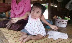 """วอนช่วย """"น้องเปีย"""" ด.ญ.วัย 13 ปีป่วยกระดูกพรุนตัวหดเท่าเด็ก 2 ขวบ อาศัยอยู่กับยายยากจน"""