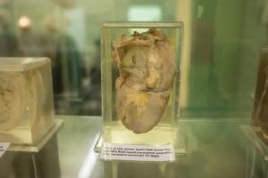 The world's first organ transplants