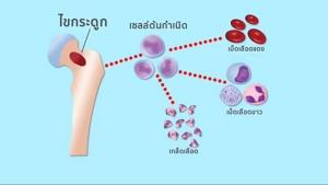 การปลูกถ่ายเซลล์ต้นกำเนิดในเด็ก