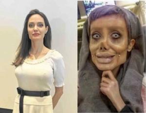 """โดนตุ๋นทั่วโลก สาวอิหร่านศัลยกรรมเหมือน """"โจลี"""" แต่กลายเป็นซอมบี้ แท้จริงแค่แต่งหน้ากับแต่งรูป"""