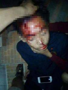 รวบแล้วมือปืนละอ่อนบุกยิงนักเรียน ม.4 บุรีรัมย์เจ็บ 2 ราย เป็นเยาวชนอายุแค่ 15 ปี อ้างไม่พอใจถูกตะโกนด่า