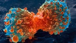 """เจาะลึกนวัตกรรมวินิจฉัยมะเร็ง """"Comprehensive Genomic Profiling"""" ความหวังใหม่ของผู้ป่วย"""