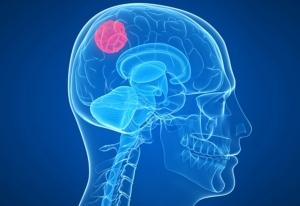 """ปวดหัวเรื้อรัง รุนแรงเพิ่มขึ้น อาการเสี่ยง """"เนื้องอกสมอง"""""""