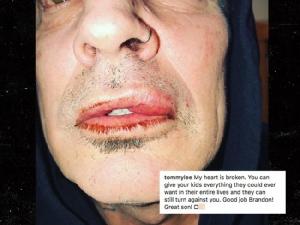 """""""ทอมมี"""" ลี โดนลูกชายชกหน้าจนปากแตก!!! ผู้เป็นแม่บอก พ่อประสาอะไร แจ้งตำรวจจับลูก"""