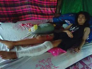 วอนช่วยด่วน! นศ.สาวตากเหยื่อคนเมายาบ้าฟันขาหวิดขาด ครอบครัวสุดลำเค็ญ-พ่อป่วยติดเตียง
